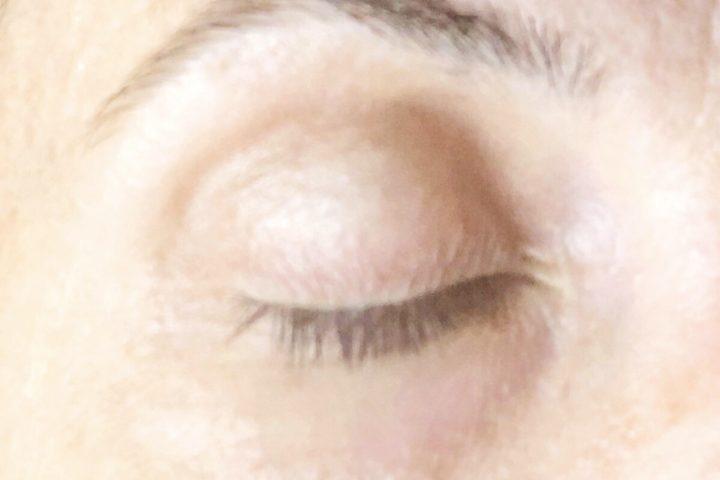 Grani di miglio: i rimedi che sto usando per eliminarli dalla zona occhi